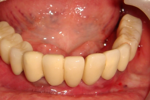 after-lower-full-arch-implant-restoration
