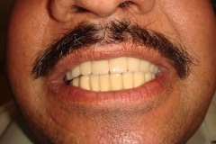 after-full-mouth-rehabilitation-with-implants-and-grafting-c