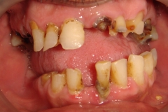 before-full-mouth-rehabilitation-with-implants-and-grafting-a