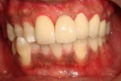 after-single-implant-and-procera-crowns-d