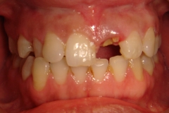 before-single-tooth-implant-x